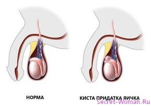 Мужская болезнь: признаки кисты яичка