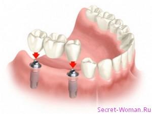 Протезирование зубов при отсутствии зубов